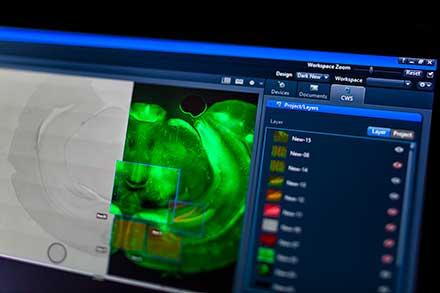 Microscopy Software Modules