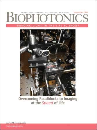 BioPhotonics: November 2014
