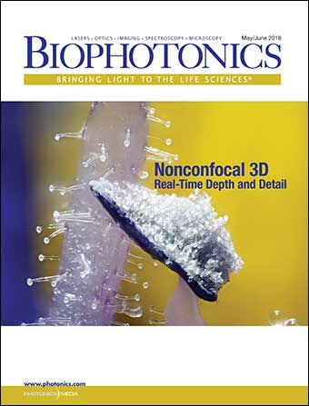 BioPhotonics: May/Jun 2018
